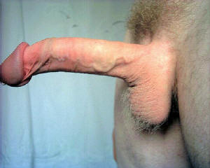 Opinion you retractable foreskin male opinion